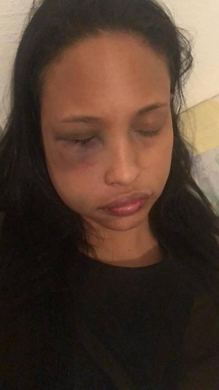 Jovem desmaiou após ser agredida por Alexandre Talento