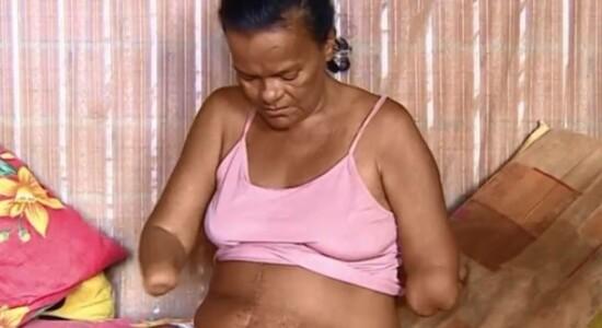Mulher amputada teve o benefício negado por não poder assinar